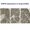 EGFR expression in lung models